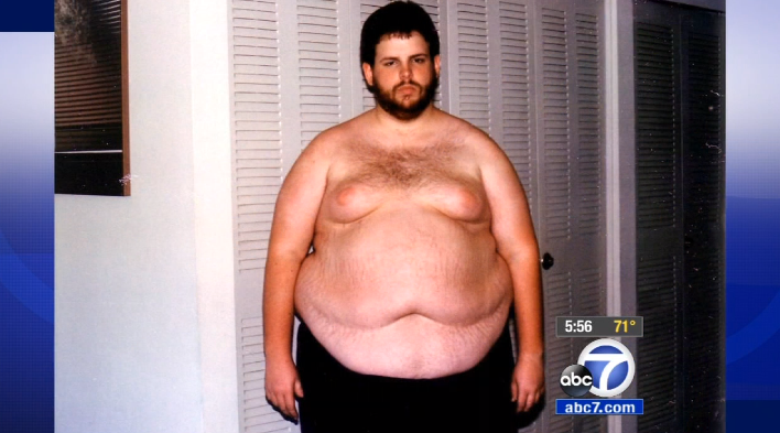 Extreme weight loss in week picture 2